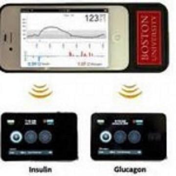 «Πιο Κοντά το Bιονικό Πάγκρεας για τους Διαβητικούς!», από τον Παθολόγο-Διαβητολόγο  Dr. Δημήτρη Ρηγόπουλο και το smarthealth.gr!